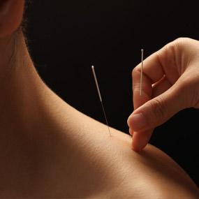 Acupuncture aiguille épaule pour